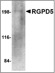 AP30714PU-N - RGPD5 / RGPD6
