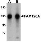 AP30329PU-N - FAM120A
