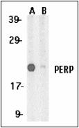 AP30659PU-N - PERP