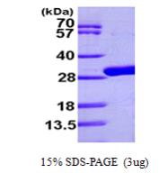 AR09599PU-L - Uridine phosphorylase / UDP