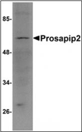 AP30694PU-N - TBKBP1
