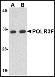 AP30684PU-N - POLR3F