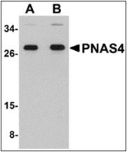 AP30682PU-N - PPPDE1