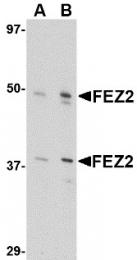 AP30335PU-N - Zygin-2