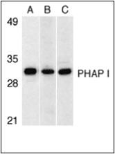 AP30664PU-N - ANP32A