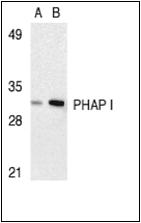 AP30663PU-N - ANP32A
