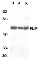 AP30342PU-N - CFLAR / Casper / I-FLICE