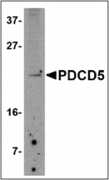 AP30654PU-N - PDCD5
