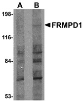 AP30347PU-N - FRMPD1