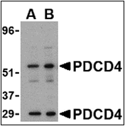 AP30652PU-N - PDCD4
