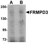 AP30348PU-N - FRMPD3