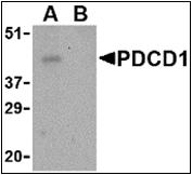 AP30651PU-N - CD279 / PD1