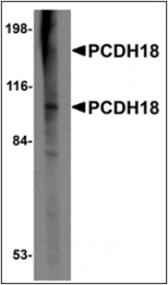 AP30649PU-N - PCDH18