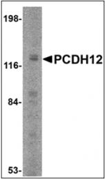 AP30648PU-N - Protocadherin-12 / PCDH12