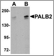 AP30645PU-N - PALB2