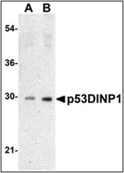 AP30639PU-N - TP53INP1