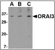 AP30634PU-N - ORAI3