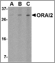 AP30633PU-N - ORAI2