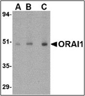 AP30632PU-N - ORAI1