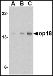 AP30629PU-N - Stathmin / STMN1
