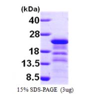 AR09609PU-N - HIV-1