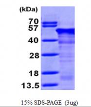 AR09610PU-L - Reticulocalbin-1 / RCN1