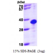 AR09614PU-L - Thiamine-triphosphatase (THTPA)