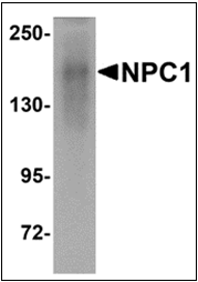 AP30613PU-N - NPC1