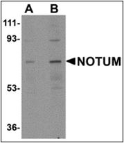 AP30609PU-N - Notum