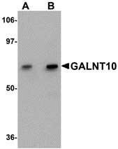 AP30351PU-N - GALNT10