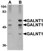 AP30352PU-N - GALNT10