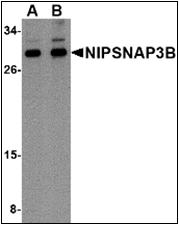 AP30601PU-N - NipSnap3B