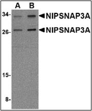 AP30600PU-N - NipSnap3A / NipSnap4