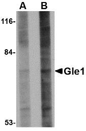AP30367PU-N - GLE1 / GLE1L