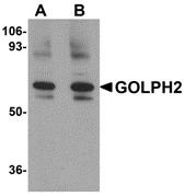 AP30371PU-N - Golgi membrane protein 1 / GOLM1