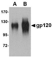 AP30374PU-N - HIV-1