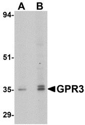 AP30377PU-N - GPR3 / ACCA