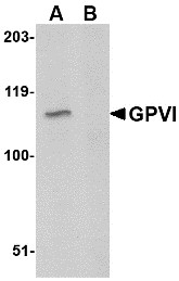 AP30378PU-N - Platelet glycoprotein VI