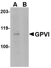 AP30379PU-N - Platelet glycoprotein VI