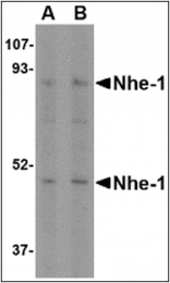 AP30592PU-N - SLC9A1 / NHE1