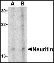 AP30587PU-N - Neuritin