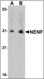 AP30585PU-N - Neudesin