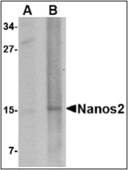 AP30582PU-N - NANOS2