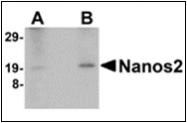AP30581PU-N - NANOS2