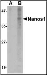 AP30579PU-N - NANOS1