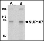 AP30618PU-N - NUP107
