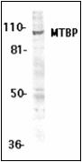 AP30568PU-N - MTBP