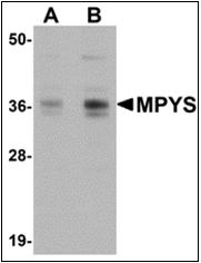 AP30565PU-N - TMEM173 / STING