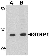 AP30387PU-N - GRTP1 / TBC1D6