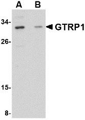 AP30388PU-N - GRTP1 / TBC1D6
